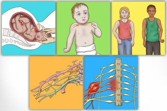 Personal Injury Law – Erbs Palsy Illustrations: Design and development of 5 illustrations depicting various facets of Erbs palsy for use in diverse applications such as company website, Powerpoint presentations, and social media posts (Facebook, Twitter, Instagram), as well as possible print use and larger screen displays. Client requested a very straightforward rendering of the subject with a natural, soft, gentle, and respectful style, not graphic or disturbing in any way.